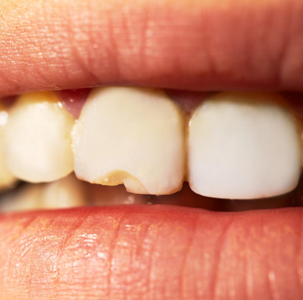 Macro shot of the broken tooth