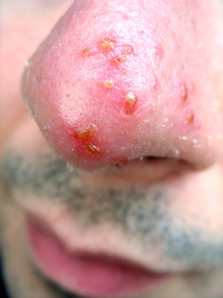 A medical condition closeup of the common cold sore virus herpes simplex on an infected victims nose. Triggers can be viral or from strong sun exposure.