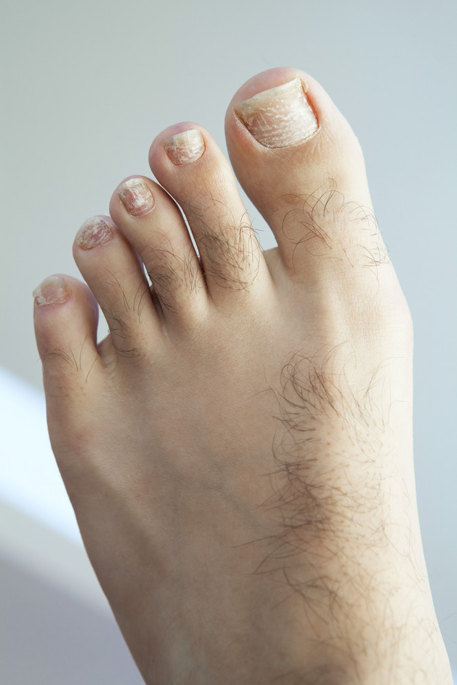 Closeup of a human foot and toes with cracked and peeling toe nails.