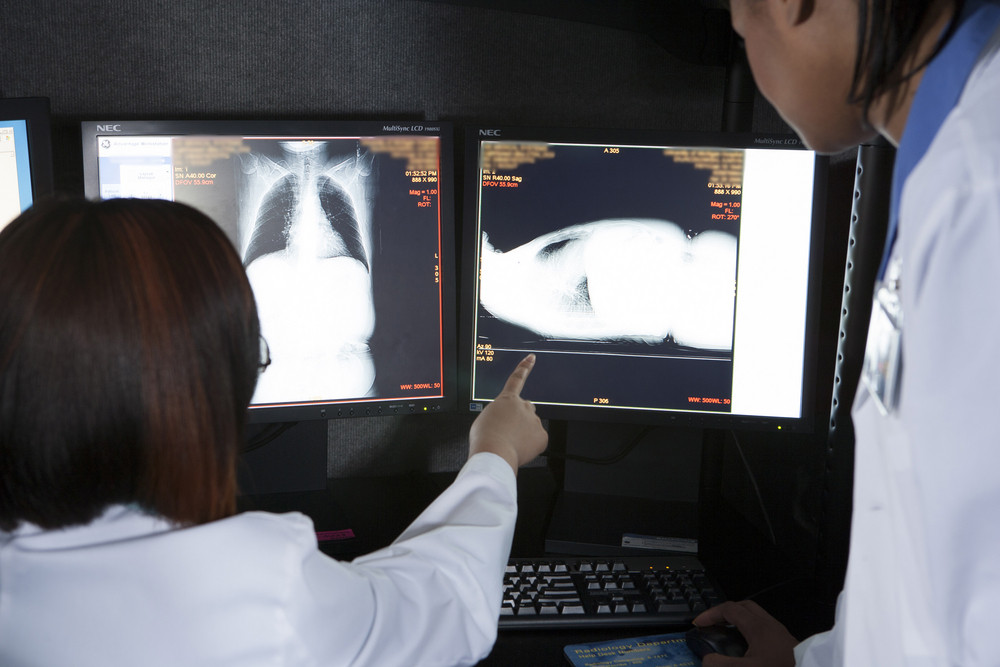 Doctor viewing xray