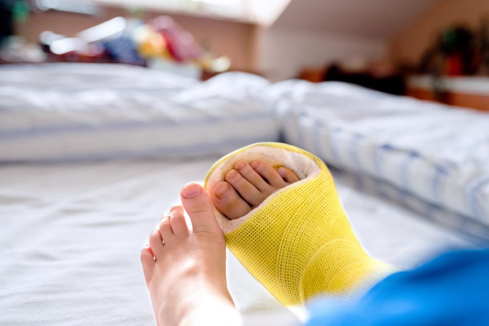 Broken leg in cast of unrecognizable little boy sitting on bed.