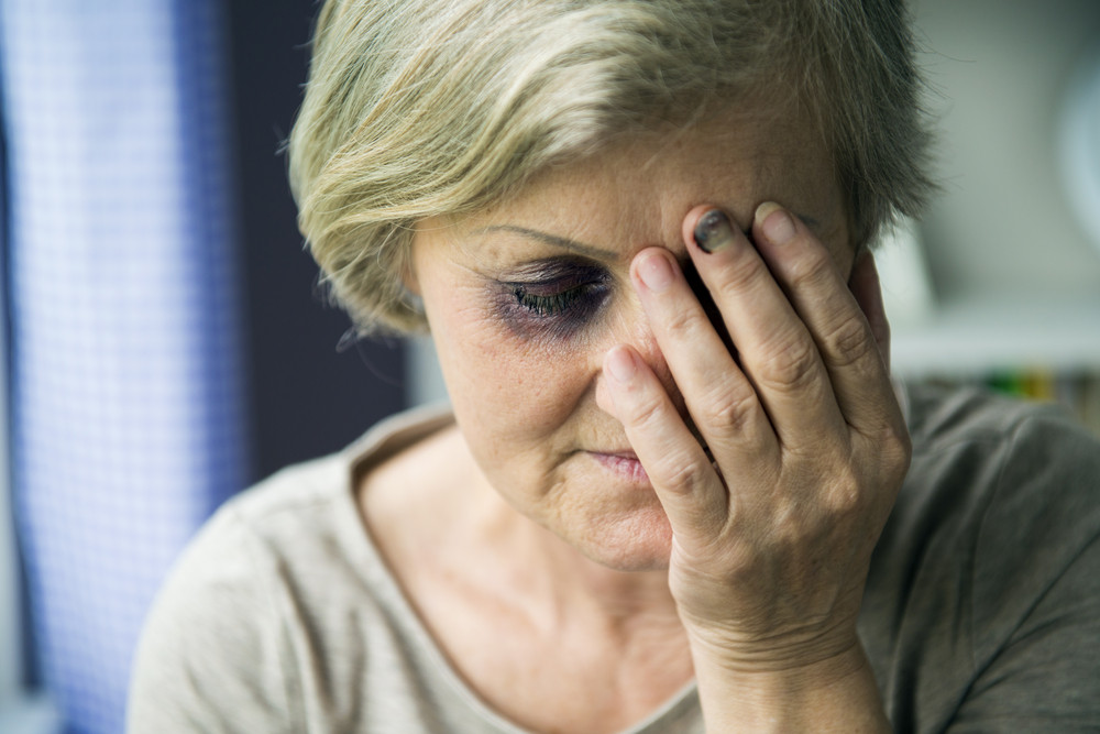 Senior woman with black eye is victim of domestic violence