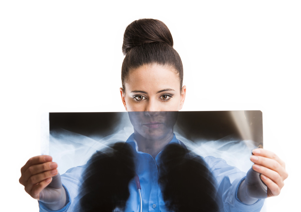 Smiling medical doctor woman with X-ray. Isolated on white background.