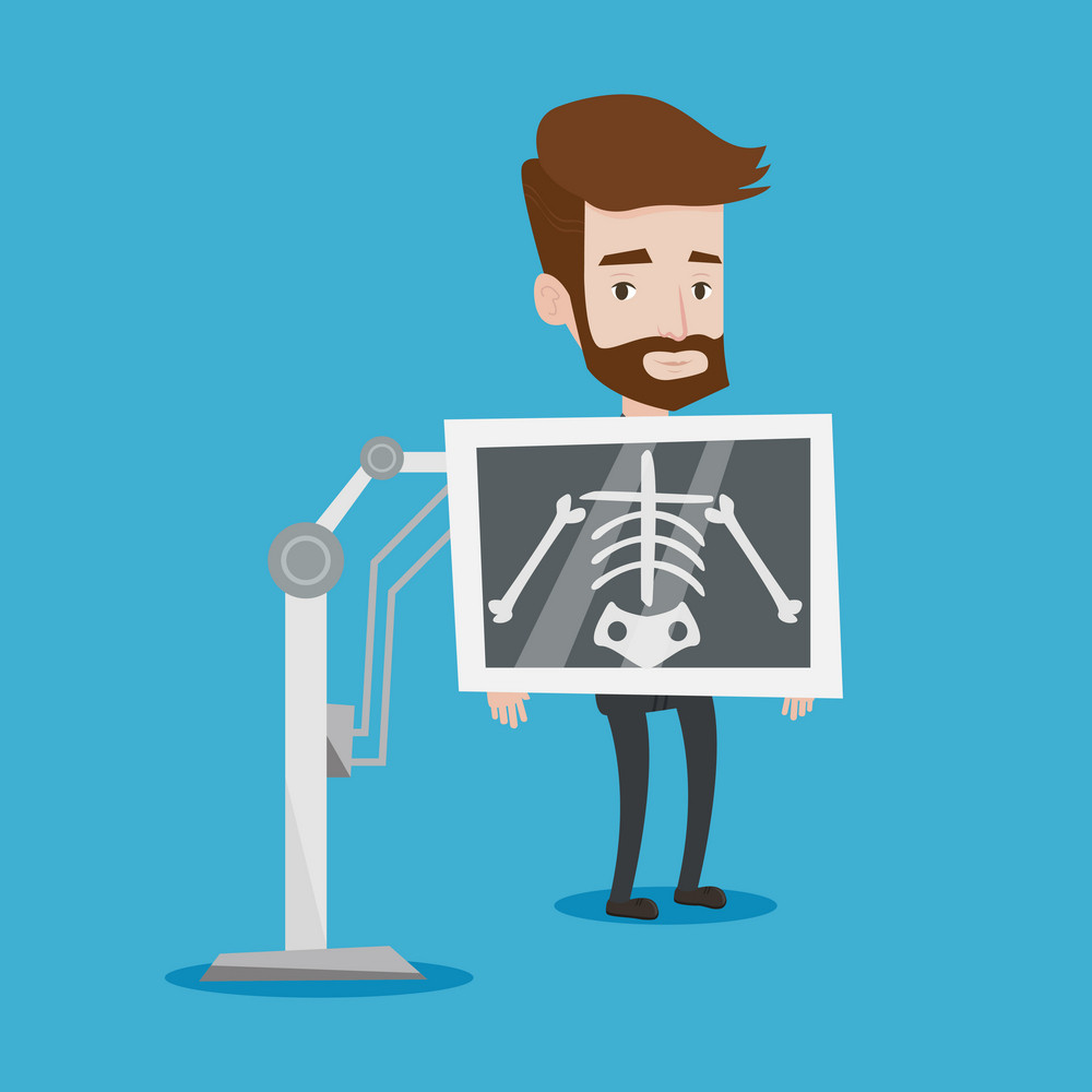 Young hipster patient with the beard during chest x ray procedure. Young man with x ray screen showing his skeleton. Vector flat design illustration. Square layout.