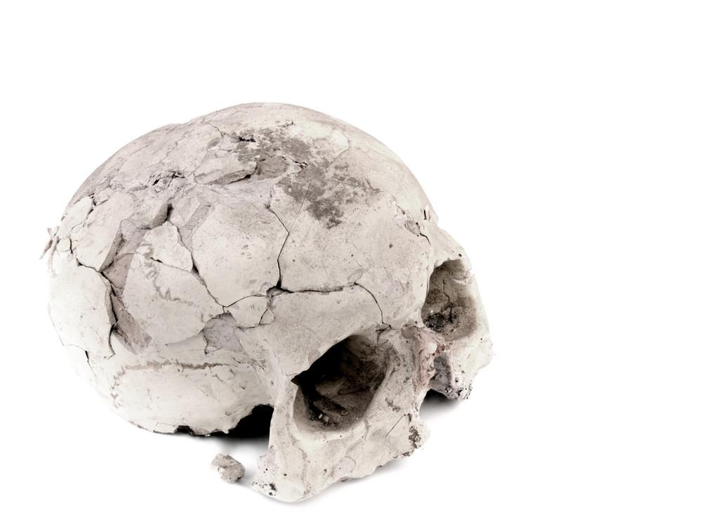 Gypsum Academical Model Of Human Cranium Isolated On White