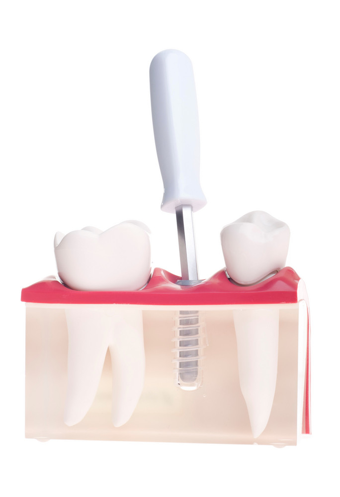Implant Dental Model