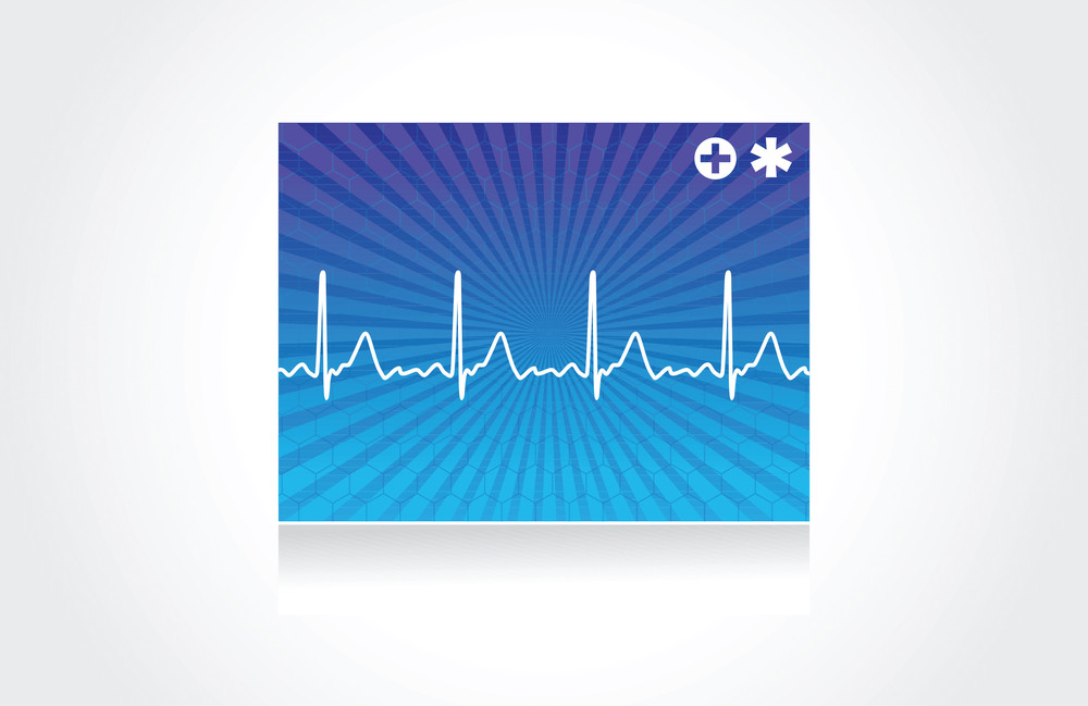 Normal Electronic Cardiogram On Blue Background