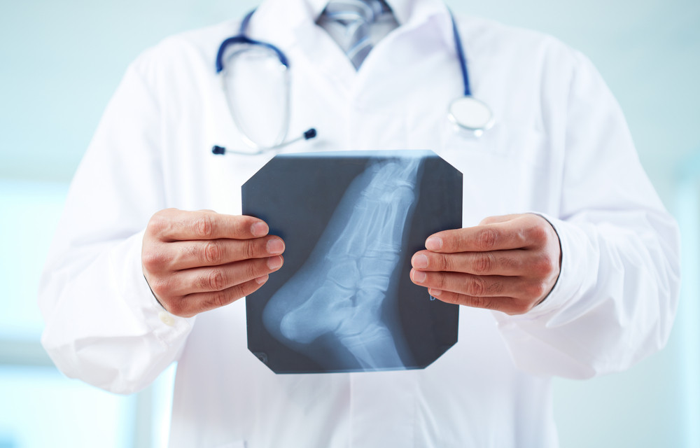 Close-up of doctor holding x-ray of human foot