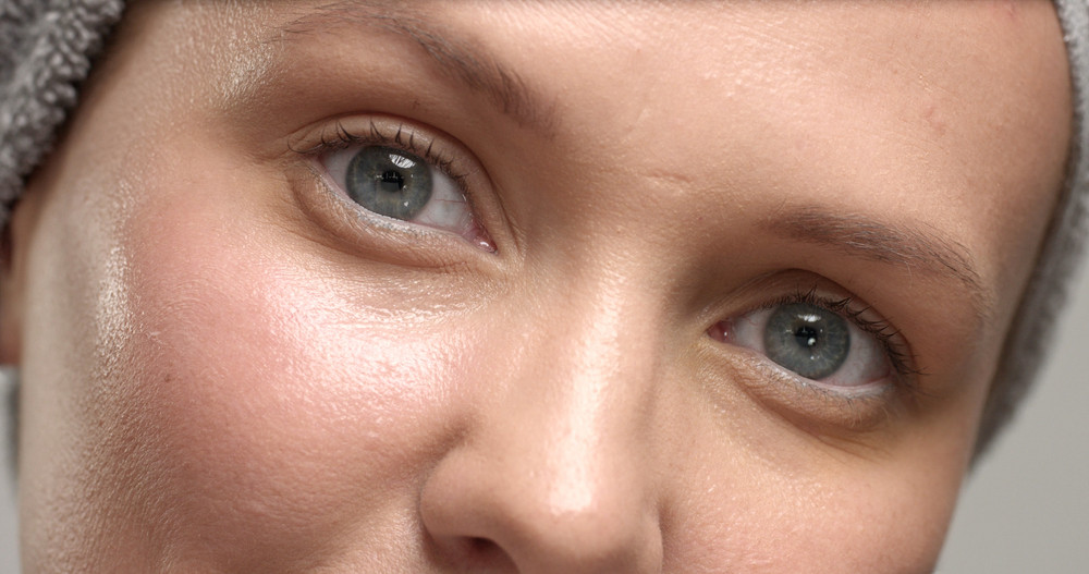 closeup of 30's woman's eue with a eye cream massage it and rub it on