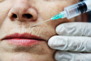 Elderly woman getting Botox injection procedure