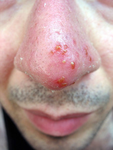 A medical condition closeup of the common coldsore virus herpes simplex on an infected victims nose. Triggers can be viral or from strong sun exposure.