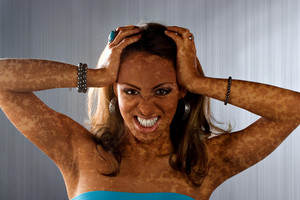 A woman posing with a medical skin condition that looks like vitiligo or leucoderma.