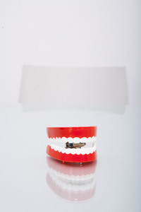 Chatter teeth on desk