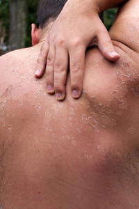 Close up detail of a very bad sunburn showing the peeling blistered skin of a mans back.  Shallow depth of field.