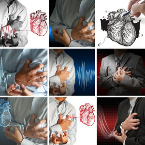 Collection Of Heart Attack
