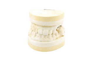 Dental Prosthesis Study Model On White