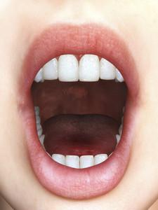 Digital Mouth
