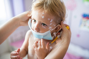 Little two year old girl at home sick with chickenpox, white antiseptic cream applied to the rash. Unrecognizable mother giving her protective mask.