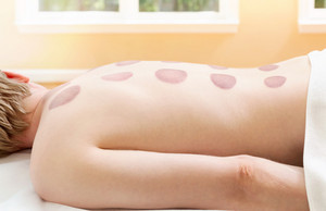 Man after receiving cupping therapy on his back