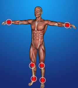 Human Body  Inflammation
