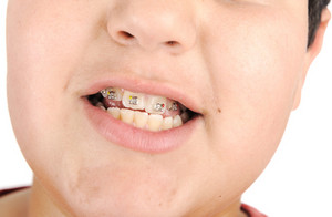 Kid showing off his braces