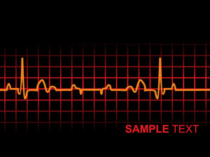 Lifeline In An Electrocardiogram