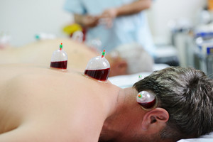 Medical Hijama cupping therapy on human body