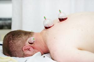 Medical Hijama cupping therapy on human body