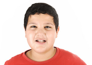 Portrait of a young kid with braces