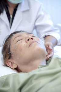 asian woman undergoing of acupuncture beauty face treatment