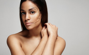woman with a dry skin cracked cheek. Dry skin concept