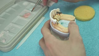 Dental technician making teeth implant