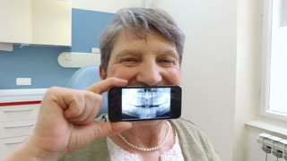 Close up of elderly woman holding smartphone with photo of dental X- ray