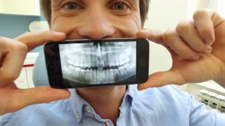 Close up of man holding smartphone with photo of dental X-ray at dentist