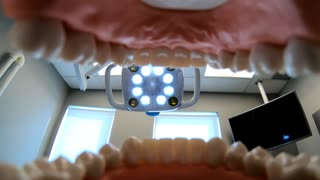 Person sitting in dentist chair shot from inside mouth