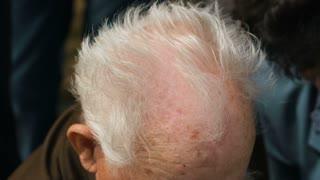 Balding Head of old man