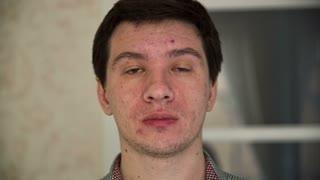 Man with Acne- problem skin