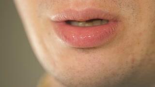 Man showing white tongue