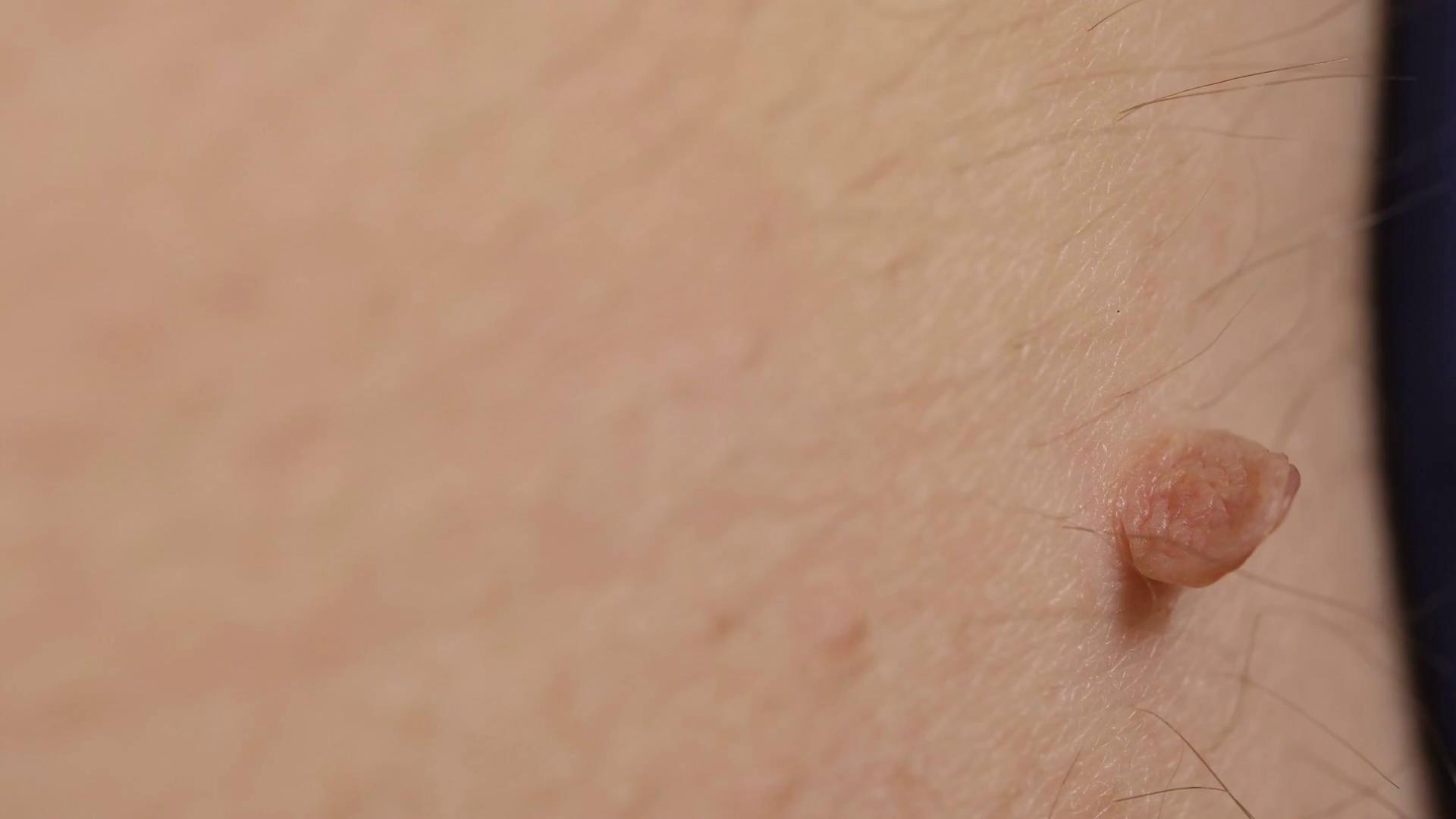 Papilloma on body, Traducere
