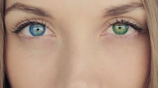 Woman With Blue And Green Eyes- Heterochromia