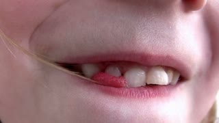 Child Wiggling Tooth