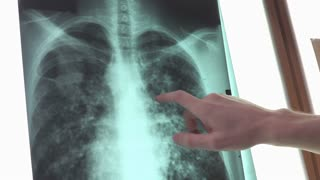 Human chest X-ray analyzed and described by doctor 4k