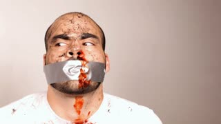 Man in white T-Shirt with Duct Tape on Bloody face