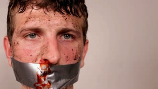 Man with Bloody Face and Duct Tape mouth