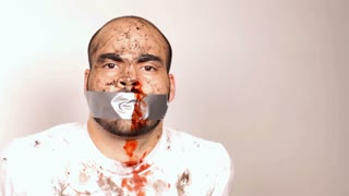 Man with Duct Tape and Bloody Nose Tied Up