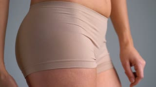 Female hip stretch marks and cellulite on the skin