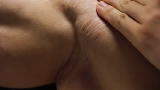 Male stretch marks on the skin of the hands, shoulders and chest close-up
