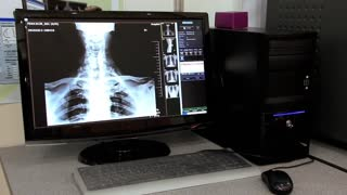 Monitor with x-ray image in diagnostic laboratory