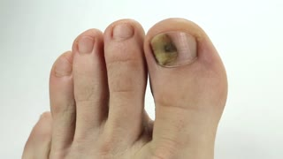 Toenails with fungal infection. Sick nail. Fungus of big toe. Trauma of toenail. Fungi Toes. Bruise under the nail of big toe. Injury to nail. Subungual hematoma. Separation of the nail from nail bed