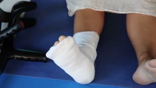 Woman with plaster on the right foot. Fracture of the right leg. Plaster on the right foot. Broken leg in plaster, close up